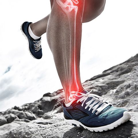 Exercises for Medial Tibial Stress Syndrome